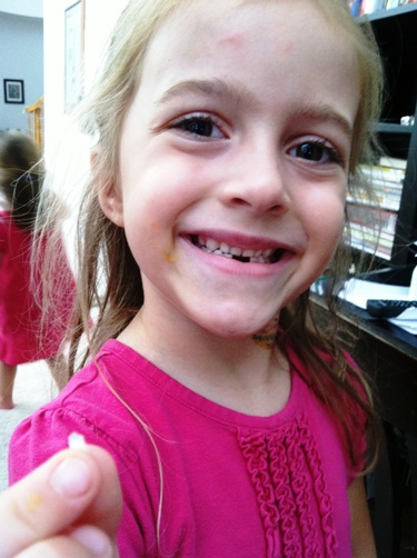 fishchick lost tooth